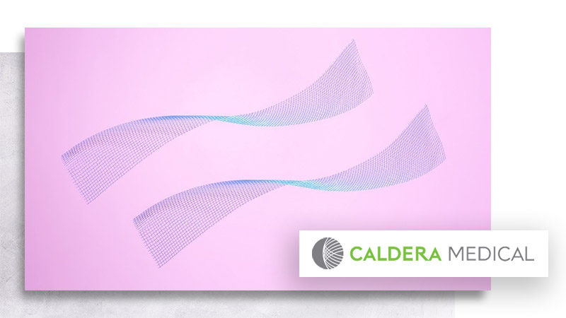 Desara-light-caldera-medical