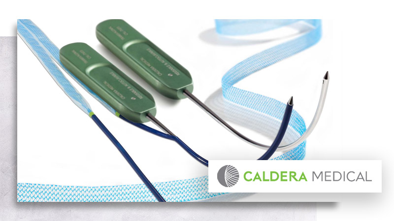 Desara-tv-caldera-medical